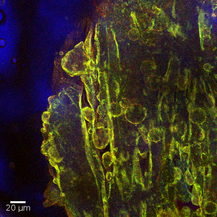 A glycerol-in-oil emulsion has decomposed into a single coalesced glycerol drop (right), but the incompressible particle-laden interface reacts by buckling into ripples and droplets.  The image was produced via fluorescence confocal microscopy, with nanoparticles shown as green and glycerol as red; the optical transmission channel is overlaid in blue.